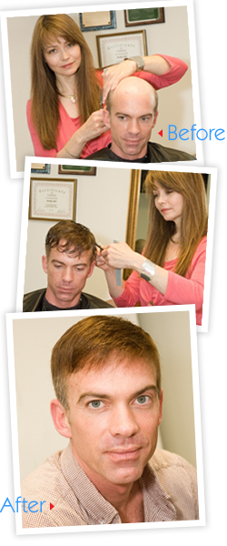 male-hair-enhancement